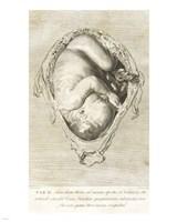 William Hunter Fine-Art Print