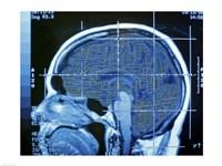 Close-up of an MRI scan of the human brain Fine-Art Print